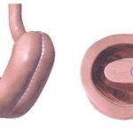 Plikace žaludku – léčba obezity